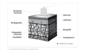 Wirkbereich des Ultraschalls in der Haut