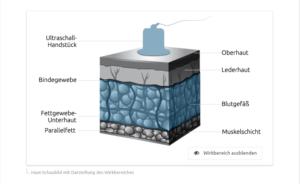 Aktiver Wirkbereich des Ultraschalls in der Haut